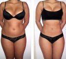 Обертывание для похудения – отзыв Алисы