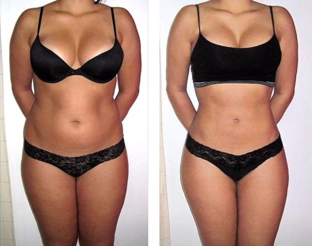 Обертывание для похудения – результаты Алисы за 1 месяц